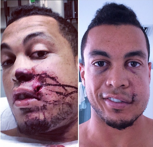 Stanton before and after